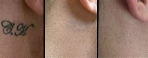 tattoo removal images eclipse lasers ltd laser removal