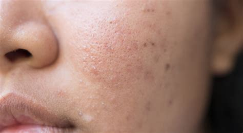 Acne Scar nodular acne understand treat and get rid of it today