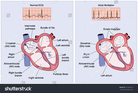 atrial fibrillation diagram drawing electrical conduction system showing stock