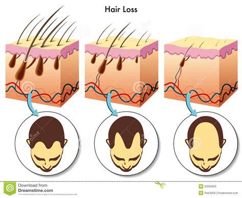 the hair of the hair loss stock photos image 25563603
