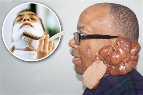 barber in milwaukee that will cut 1 year old keloids hell for milwaukee barbershop customer who can t