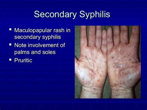 syphilis rash on hands infectious disease