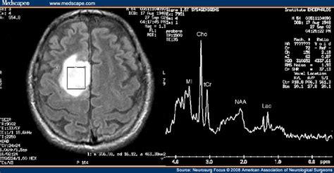 Proton Magnetic Resonance Spectroscopy by Of Proton Magnetic Resonance Spectroscopy In