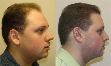 latest hair replacement techniques latest hair transplant techniques latest hair transplant