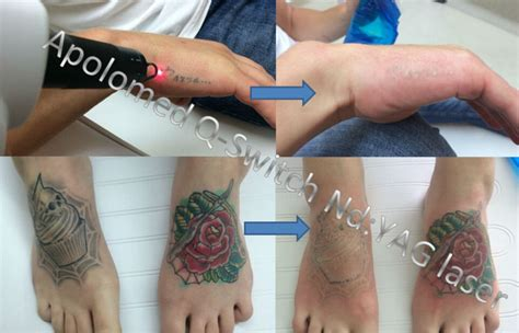 the best laser tattoo removal machine best seller nd yag laser removal machine for all
