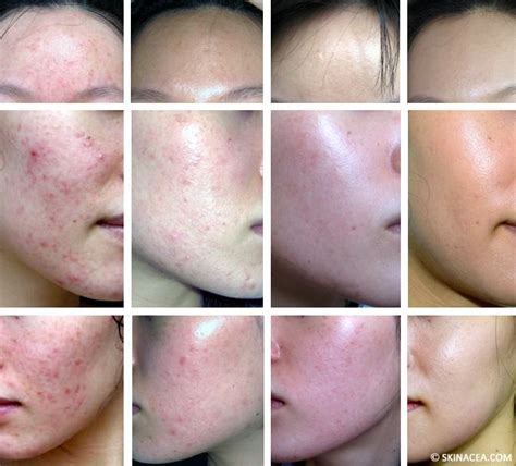 Heroin Detox And Acne by Best 25 Before And After Pictures Ideas On