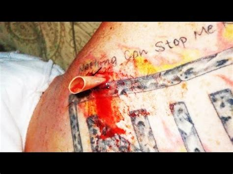 tattoo infection abscess pus filled infection is drained squeeze acne nặn mụn yo