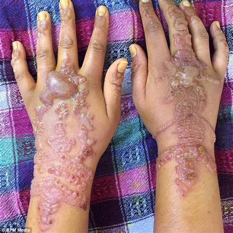 henna tattoo before and after henna nightmare for holidaymaker in morocco
