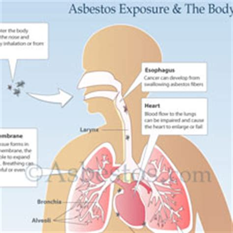 Statute Of Limitations On Mesothelioma Claims 2 by Mesothelioma Asbestos Images Diagrams Graphs