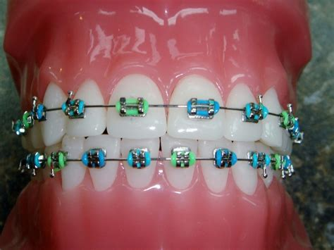 braces colors combinations carribean crush braces