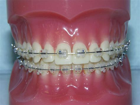 jual behel gigi kawat gigi orthodontic supplier deedental