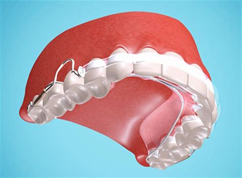 Acrylic Retainer retainers orthodontic treatment in wollongong smile team orthodontics