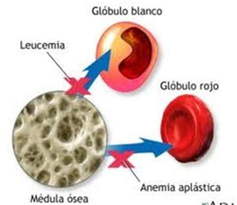 que es imagenes jpg y pdf que es la leucemia linfoblastica aguda tusaludesvida