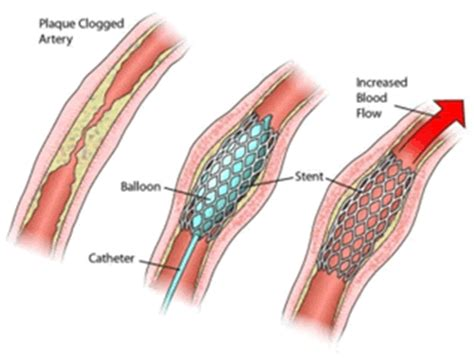 coronary angioplasty with or without stent implantation cvt surgical center angioplasty stent placement cvt