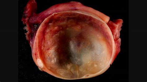 cyst burst ovarian cyst ruptured the and revealing facts