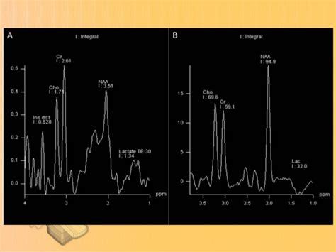 Proton Magnetic Resonance Spectroscopy by Proton Magnetic Resonance Spectroscopy