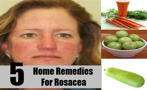 5 home remedies for rosacea treatments cure