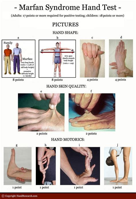 look ma no hands testing google s hands free payments video cnet 46 best images about marfan syndrome on pinterest heart