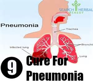 Cure for pneumonia how to cure pneumonia naturally search herbal