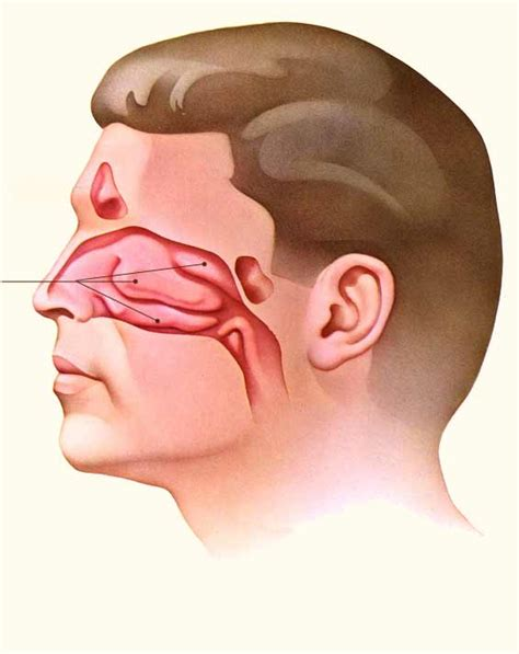 cutting edge treatment for nasal polyps the doctors tv show laser nasal surgery to correct nasal blockage