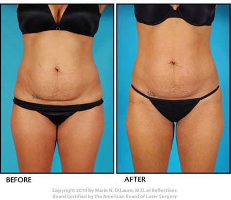 Detox After Smart Lipo by Liposuction Cost Photos Results Laser Vaser Lipo