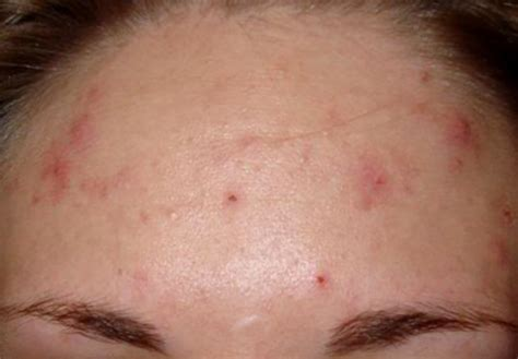 What Is Acne by Pimples Pictures Pictures Of Acne