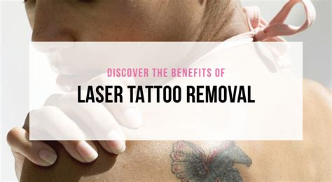 laser tattoo removal school vein specialists institute varicose vein skin