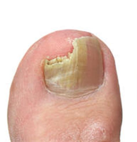 nail bed fungus what is nail fungus is it necessary to treat it