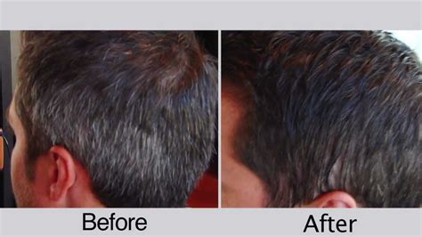 grey hair pics before and after before and after men s hair color for covering gray hair