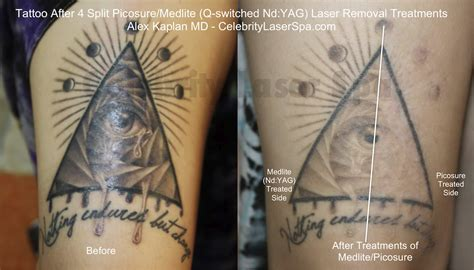 types of tattoo lasers