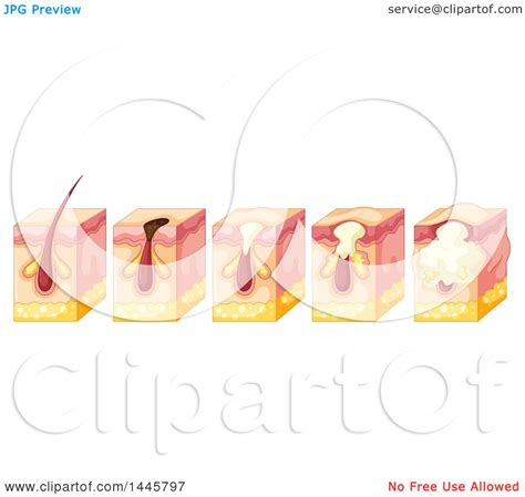 human skin structure royalty free vector image clipart of a diagram of a forming pimple in the epidermis human skin royalty free
