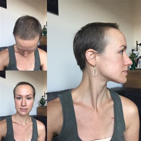 hair growth timelines after chemo chemo hair loss timeline hairsstyles co