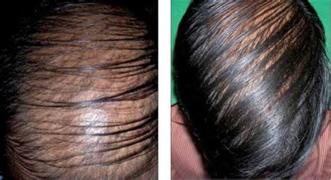 diffuse pattern hair loss diffuse hair loss with thinning of hair resembling andr