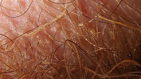 red crotch hair trichomycosis causes symptoms and treatment