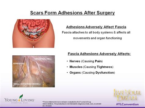 c section adhesions treatment image gallery internal scar tissue