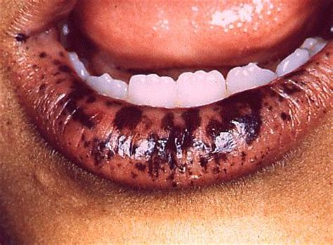 pigmentation and discoloration of oral and tissues