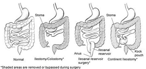 bcir drainage nddic information on bowel diversion surgeries ostomy