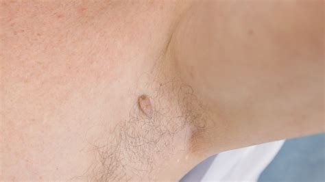skin tag removal skin tag removal laser and skin clinics