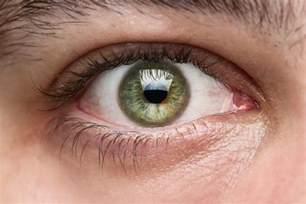 least common eye color total eye log in
