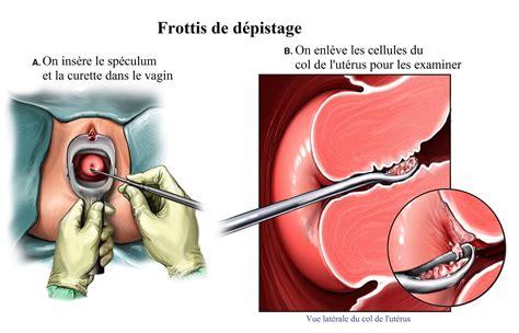 papanicolaou test frottis de d 233 pistage pap jusqu 224 quel age fr 233 quence cancer