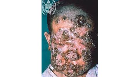 how you get morgellons disease 20 insane and mind blowing medical conditions