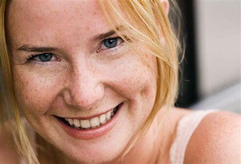 freckles picture image on medicinenet.com