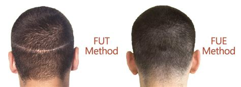 hair plugs vs transplant hair restoration vs hair transplant hair transplant dubai