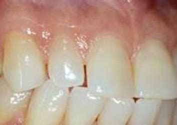 color of s gums pale gums causes around teeth white patches sore