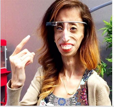 lizzie velasquez married lizzie la mujer m 225 s fea del mundo taringa