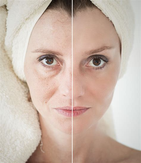 Best Anti Aging by Best Anti Aging Skin Care Treatment Tips For Glowing