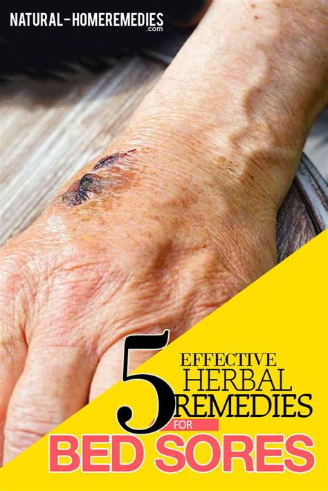 how to heal bed sores bed sores herbal remedies treatments and cures natural