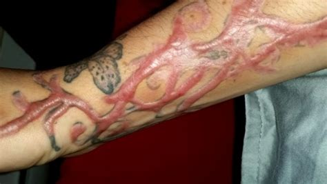learn about tattoo removal melbourne cosmetic group
