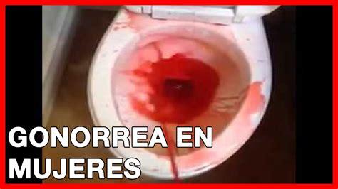 imagenes fuertes de enfermedades venereas gonorrea en mujeres sintomas tratamiento y causas youtube