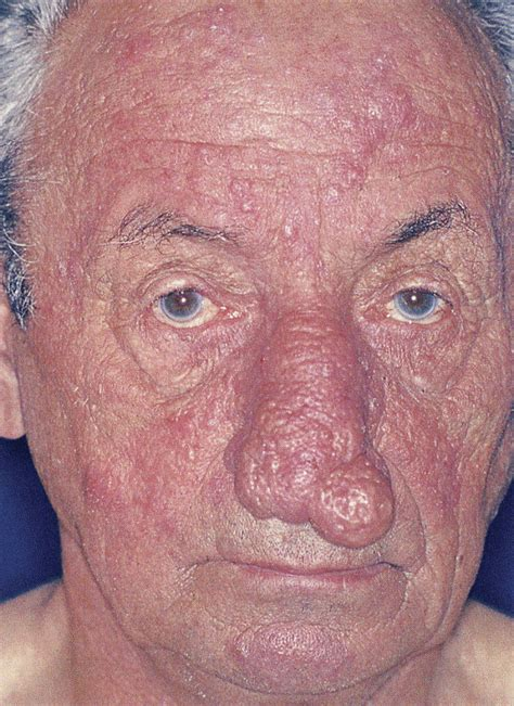 Did Get A Nose 2 by Rosaceaderm A Growing Compendium Of Rosacea Information
